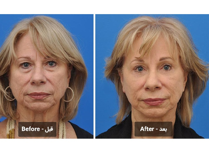 محبوبترین عمل زیبایی در دنیا - 7 عمل جراحی زیبایی محبوب