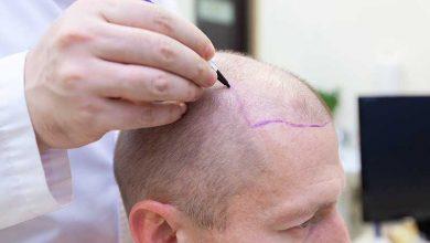 تفاوت کاشت مو به روش های مختلف