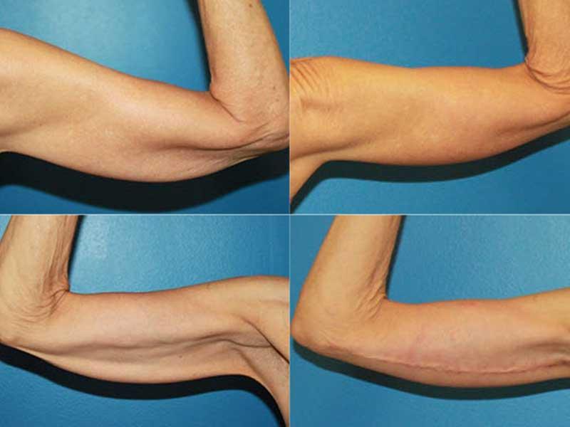 جراحی کشیدگی بازو یا براکیوپلاستی چیست؟