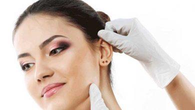 جراحی زیبایی گوش یا اتوپلاستی