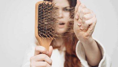 9 دلیل ریزش مو و روش های درمان آنها