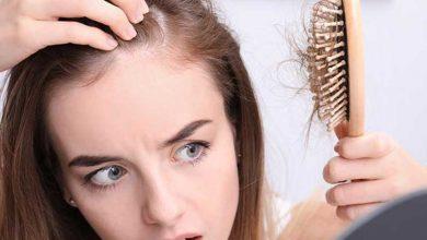 درمان ریزش مو بعد زایمان