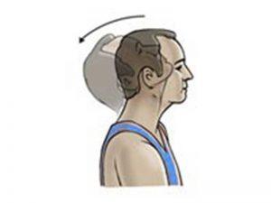 نرمش گردن